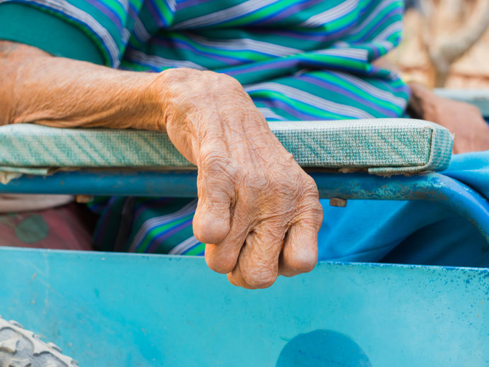 Leprosy patient rests arms on wheelchair