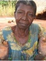 Leprosy patient